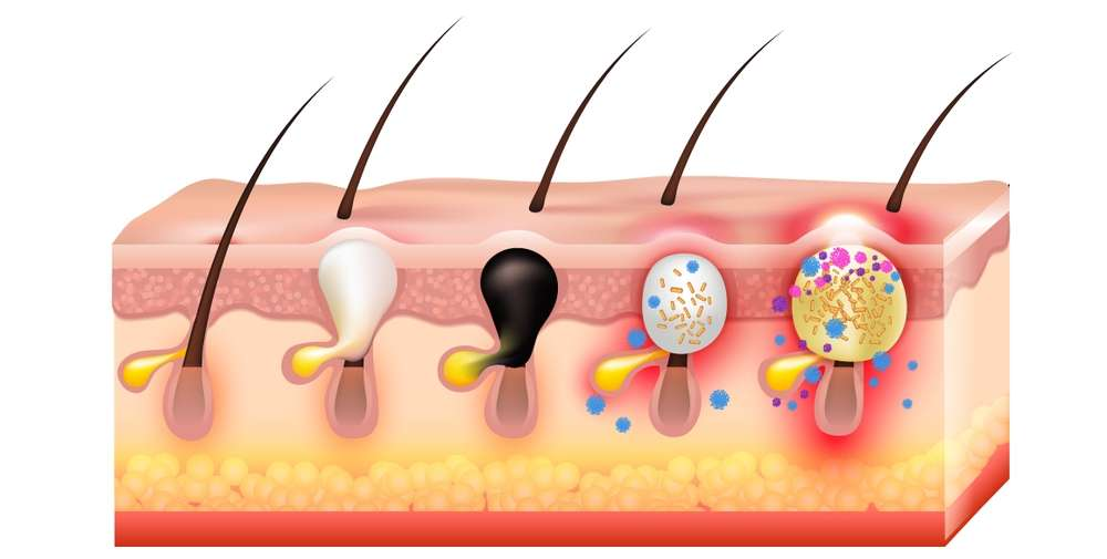 Development of Adult Hormonal Acne